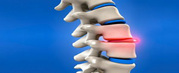 Chiropractic Treatment for a Slipped Disc